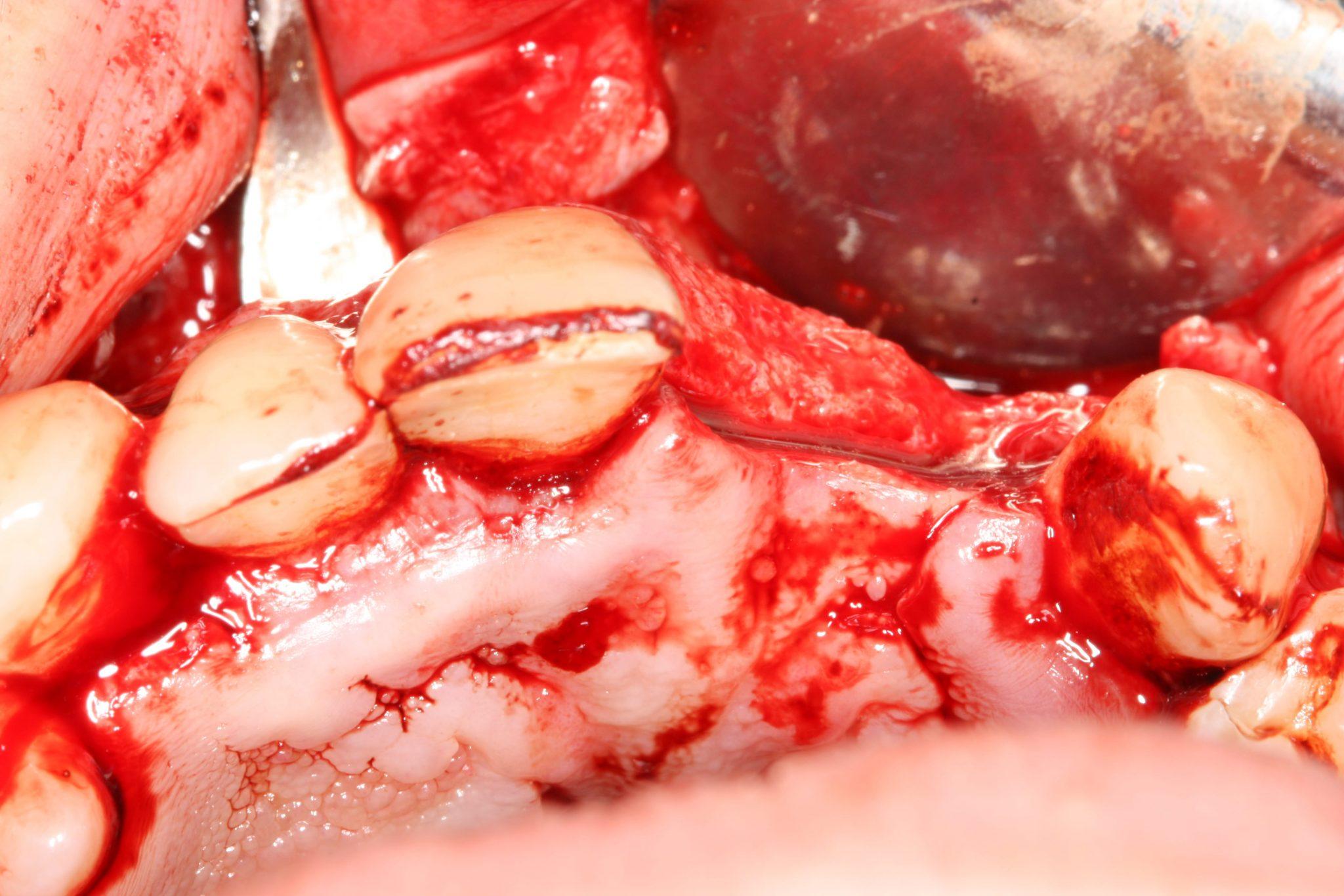 Das várias opções para regeneração óssea quais seriam as vossas opções?1-min2-min3-min4-min5